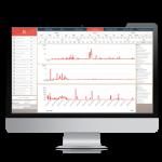 Redwood Software-HippoLine